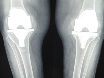 Revision Knee Replacement For Aseptic Loosening